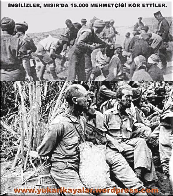 İngiliz ve Ermeniler 15 bin Mehmetçiği kör etmiş..